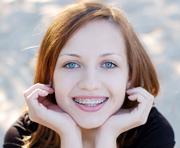 Aparate dentare - Cabinet ortodontie Bucuresti