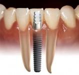 Confortdent implant dentar